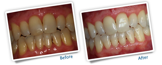 Success Stories - Deep Bleaching Teeth Whitening - Heavy Smoker Before and After Pictures
