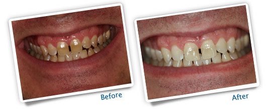 Success Stories - Professional Take-Home Whitening - Before and After Images