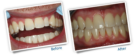 Success Stories - Great Plains Dental - Before and After Veneers